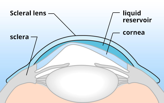 image of a scleral contact lens for keratoconus